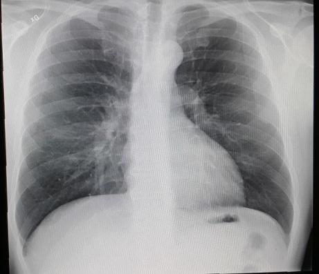 Wir sind previlegiert: wir haben ein Röntgen